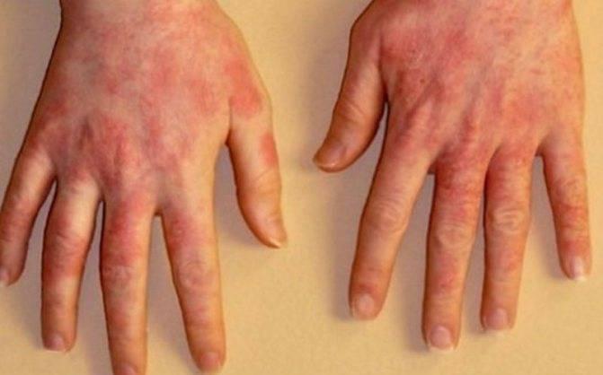 Помогает ли солярий от дерматита