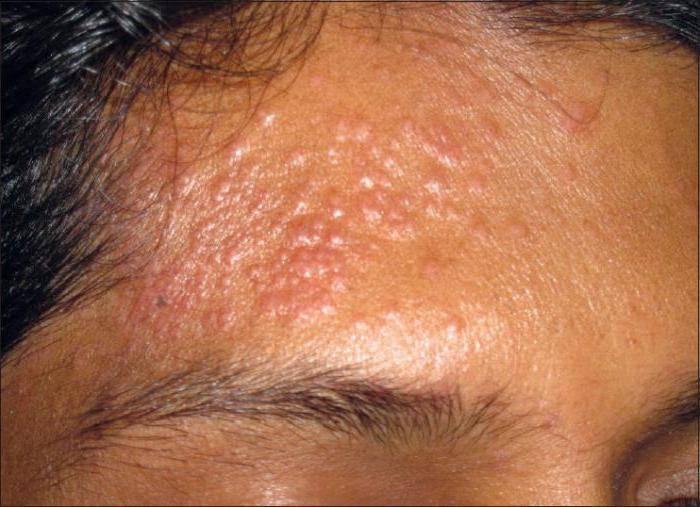 Стафилококковый дерматит у взрослых лечение