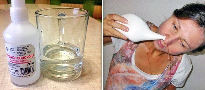Что такое «кукушка» и как правильно промывать нос при гайморите