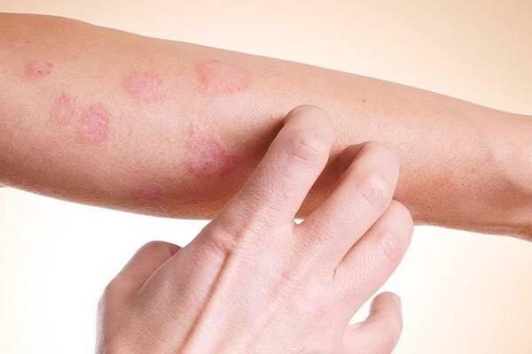 Псориаз и себорейный дерматит чем отличаются