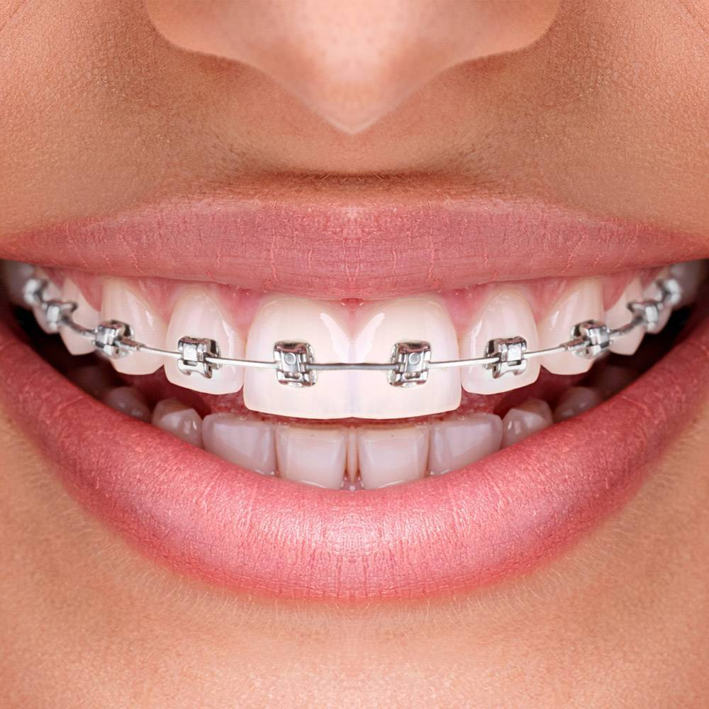 Металлические брекеты в москве - цены от 1400 рублей, адреса стоматологий, отзывы пациентов