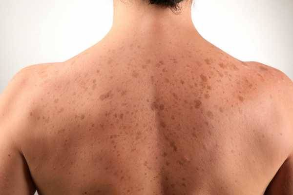 заболевание печени симптомы на коже