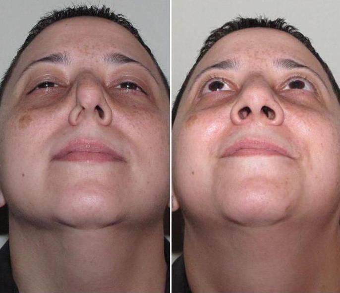 Вазотомия нижних носовых раковин, что это такое. особенности проведения операции