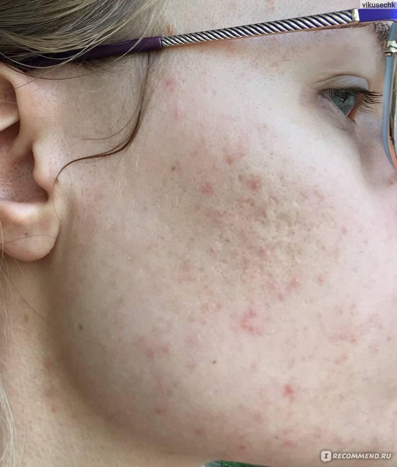 демодекоз на лице лечение