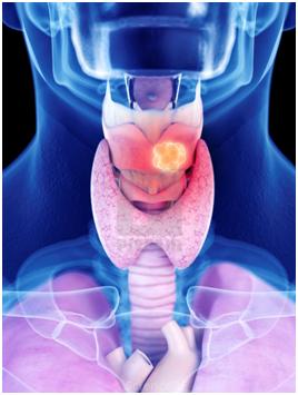 Рак гортани :: рак горла онкомаркеры