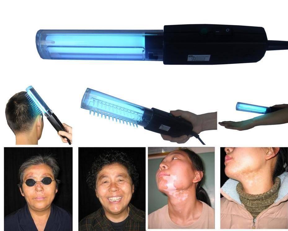Фототерапия при псориазе