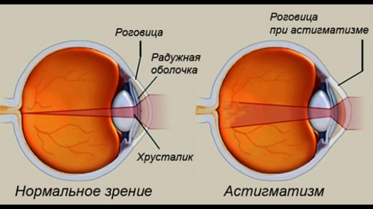 Астигматизм глаз у детей и его лечение: смешанный, гиперметропический, дальнозоркий и другие виды астигматизма