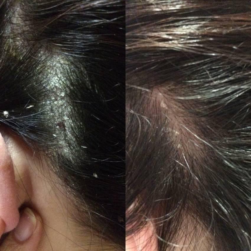 демодекс на голове