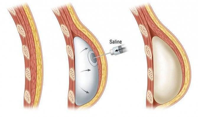 Методы реконструктивной маммопластики - восстановление груди после мастэктомии