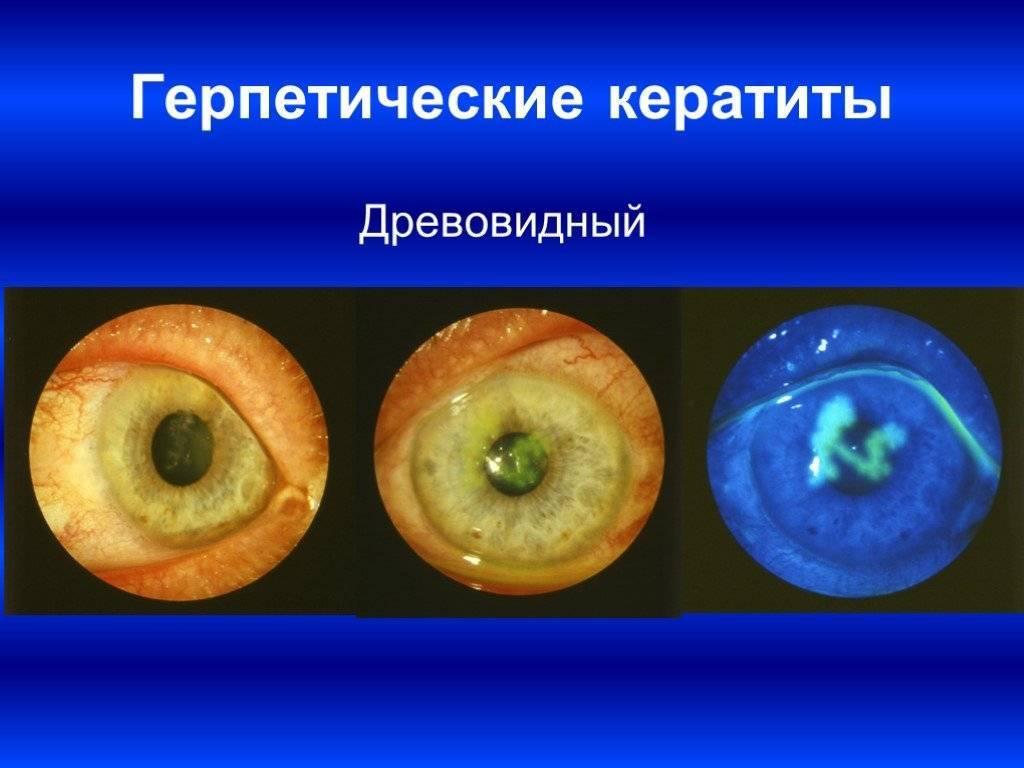 Вирусный кератит: особенности, симптомы и лечение, препараты