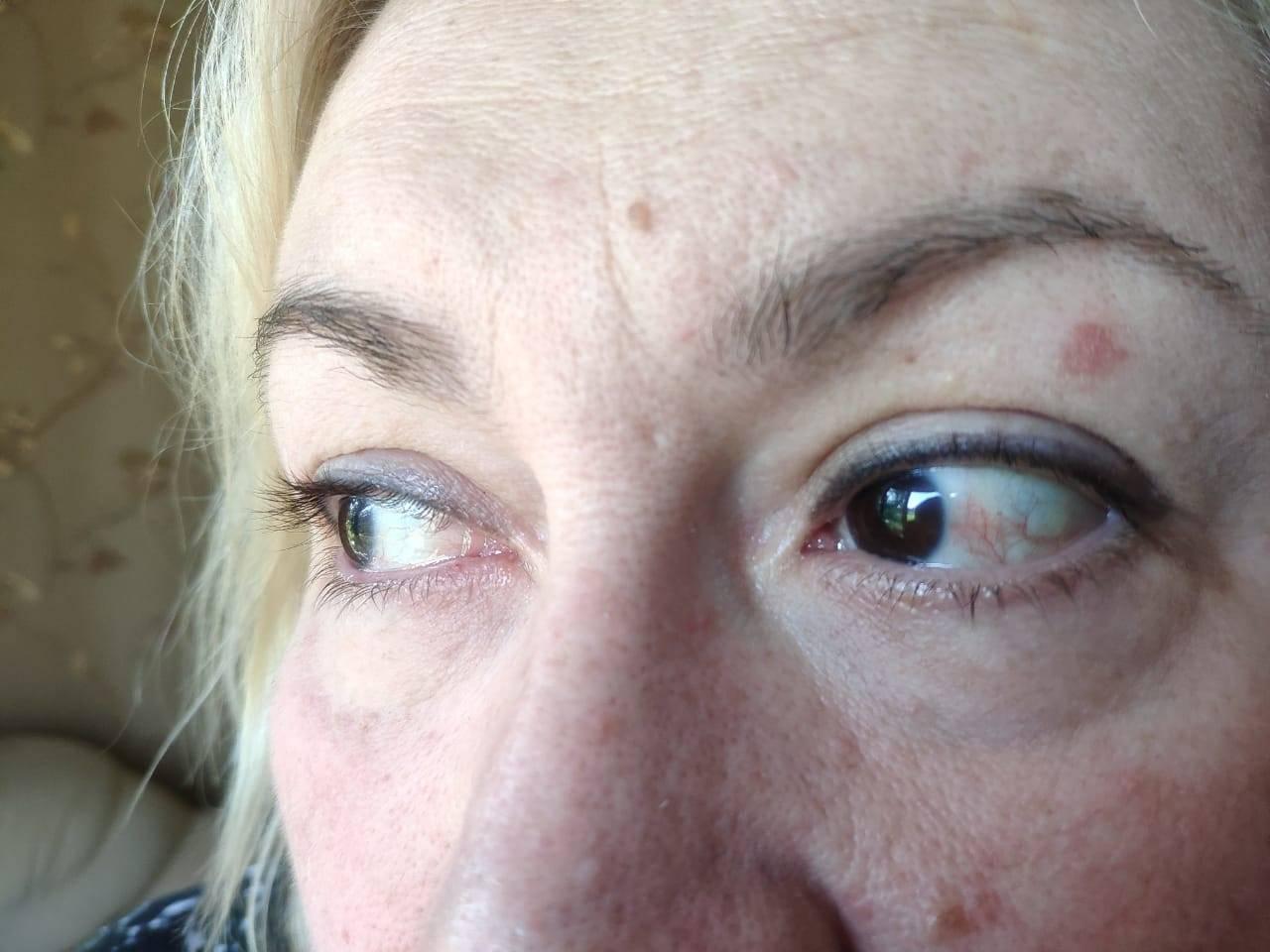 покраснение в уголках глаз