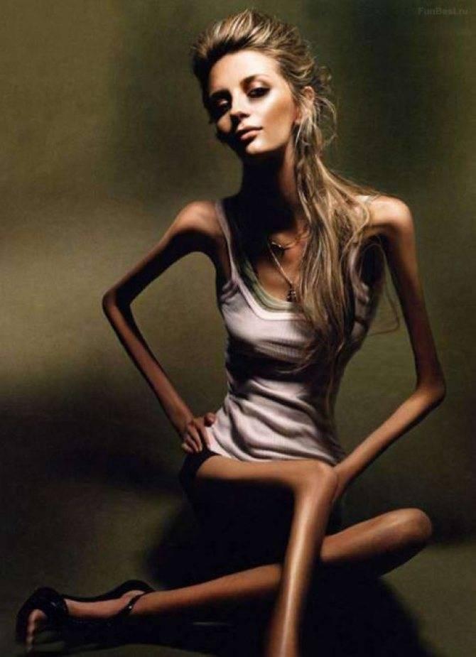 Признаки анорексии. первые признаки анорексии у подростков
