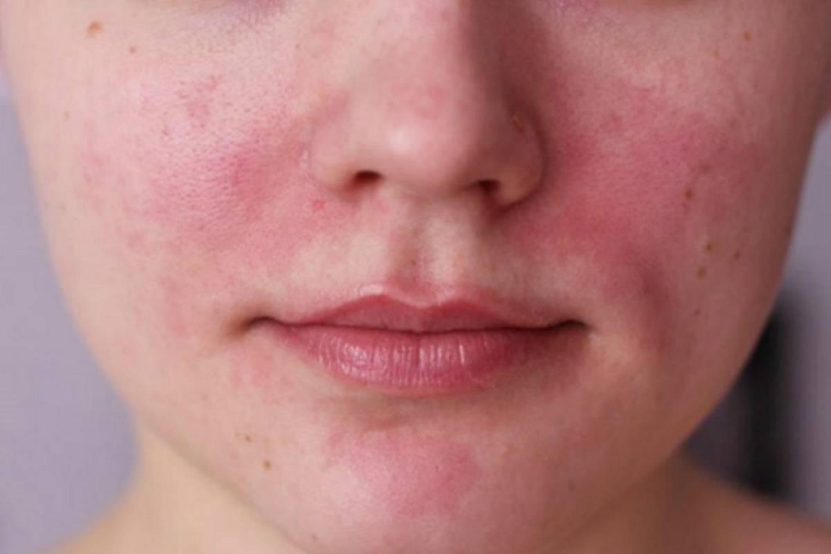 Высыпания на коже при глистах: фото, признаки, причины, способы лечения