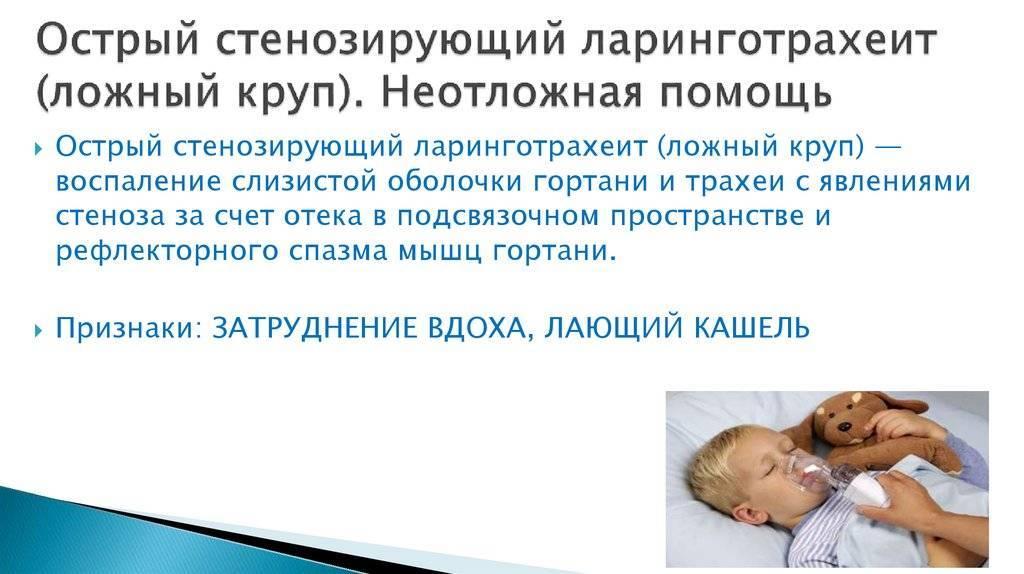 острый ларинготрахеит лечение у взрослых