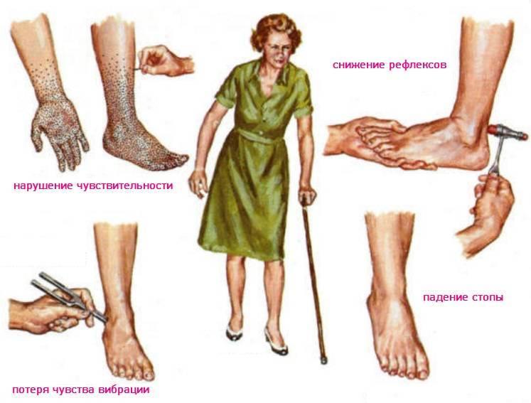 алкогольная полинейропатия симптомы