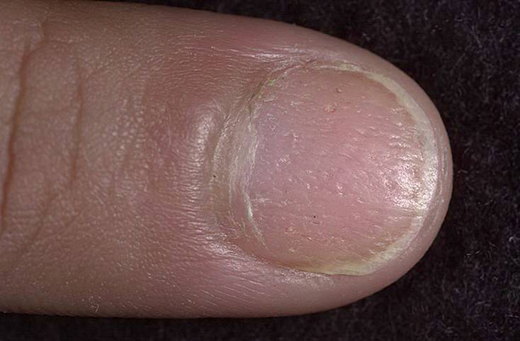 Псориаз ногтей пальцев рук медикаментозное лечение