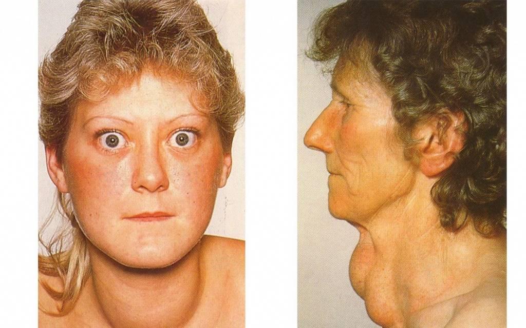 щитовидная железа гипертиреоз