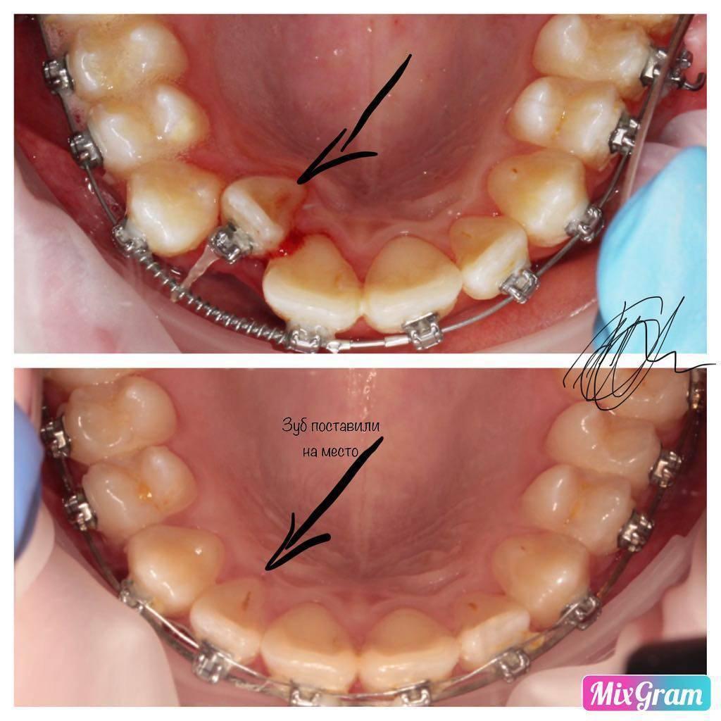 выравнивание одного зуба