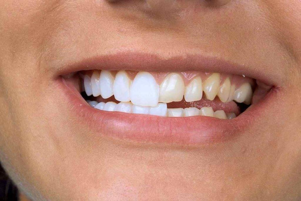 Почему зубы у взрослых становятся кривыми