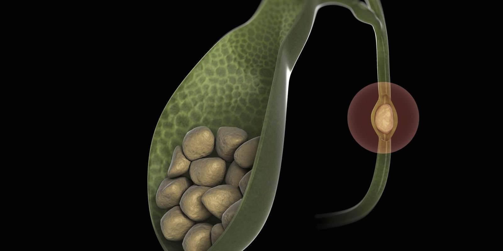 Дискинезия желчного пузыря. причины, симптомы, диагностика и лечение болезни