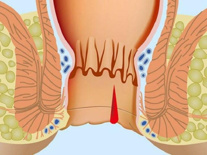 Кал с кровью: желудочная инфекция, геморрой или рак?