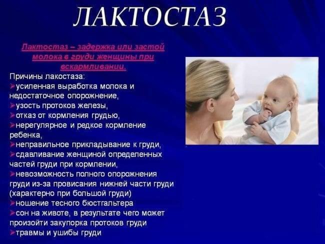 лактостаз причины