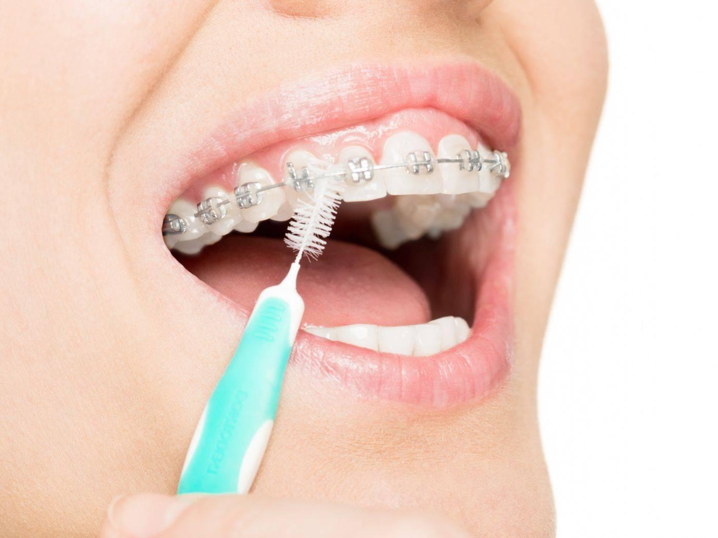 Как чистить зубы с брекетами – советы ортодонтов