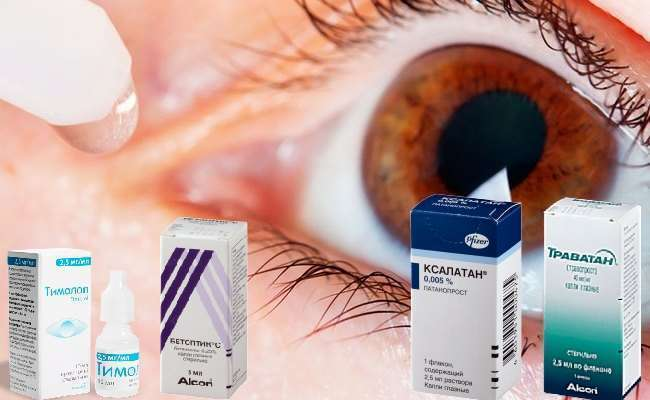 чем лечить глазное давление в домашних условиях