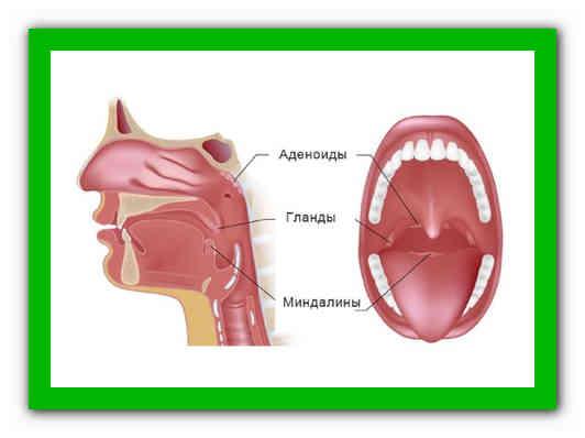 Отличие гланд от аденоидов: анатомическое строение