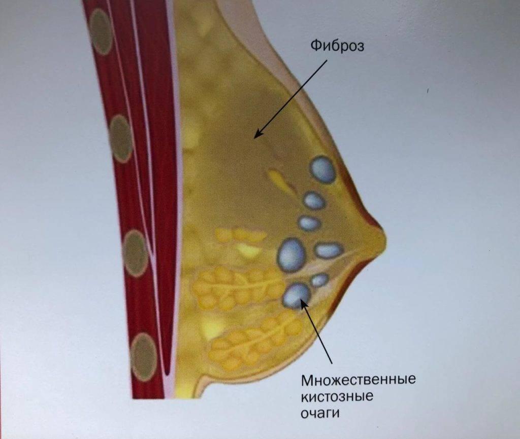 Дисгормональная гиперплазия