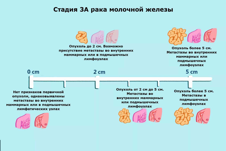 как определить стадию рака молочной железы