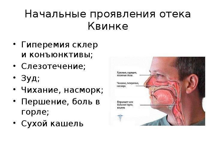 В горле щекочет начинается приступами кашель