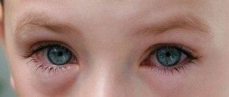 Конъюнктивит с температурой у ребенка: лечение