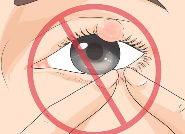 Ячмень на глазу при беременности – причины, симптомы, лечение. чем лечить ячмень на глазу при беременности на ранних, поздних сроках?