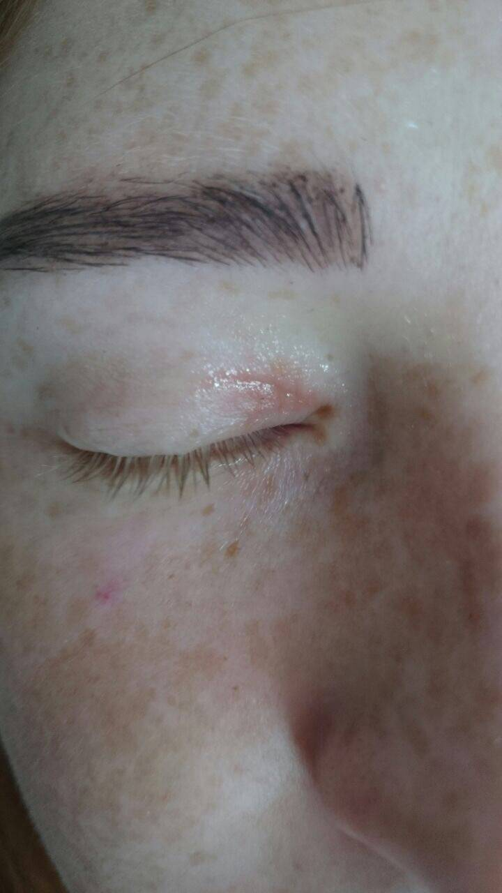 Красные пятна на веках глаз – что предпринять?