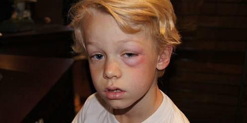 Опух глаз от укуса комара у ребенка что делать