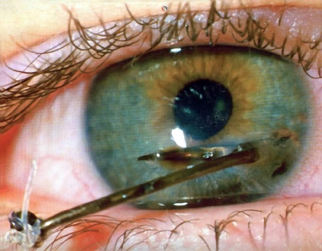 Как лечить поцарапанную роговицу глаза