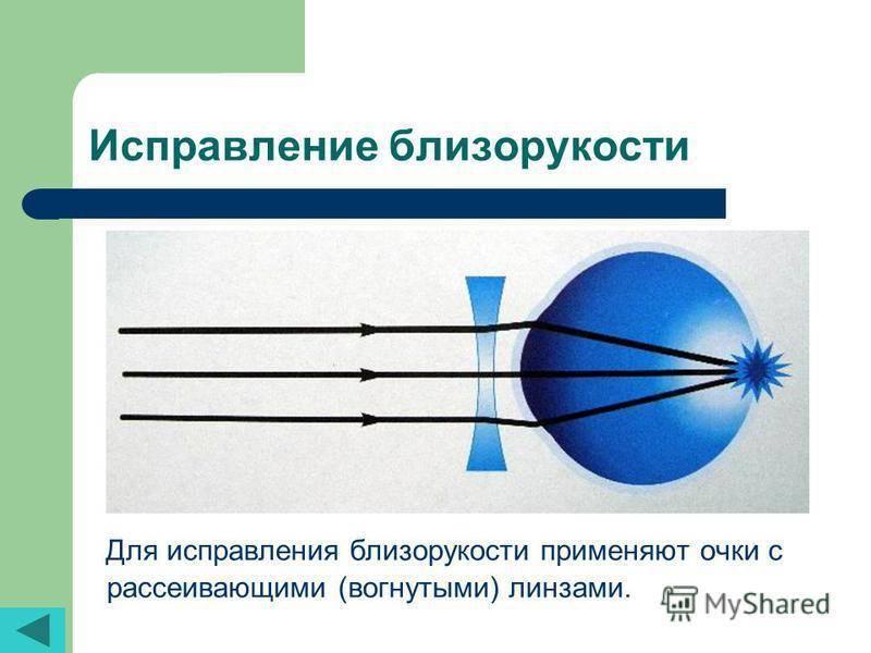 Контактная коррекция зрения – исправление дефектов с помощью линз