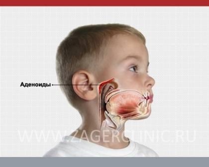 Удаление аденоидов у взрослых: последствия и профилактика