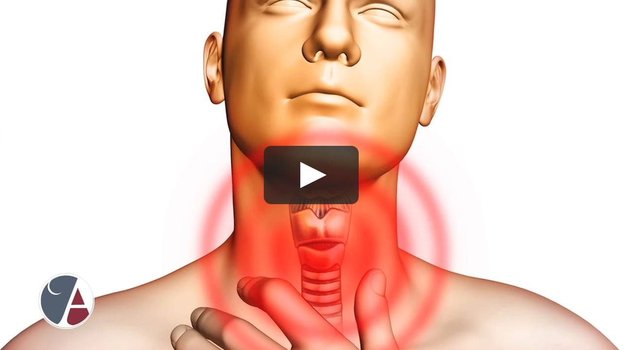 Грибковые заболевания в горле: причины кандидоза, симптомы и лечение