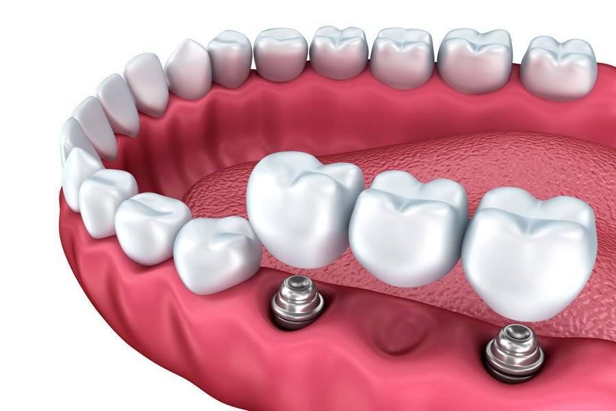 Адгезивный мостовидный протез: сделано прямо во рту пациента!