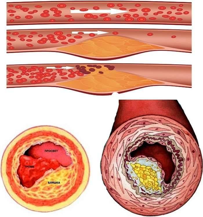 холестериновая бляшка в сердце