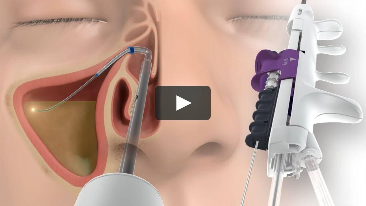Лечение гайморита лазером: безопасная и эффективная процедура