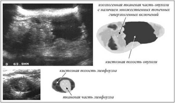 Гиперэхогенный узел в щитовидной железе что это