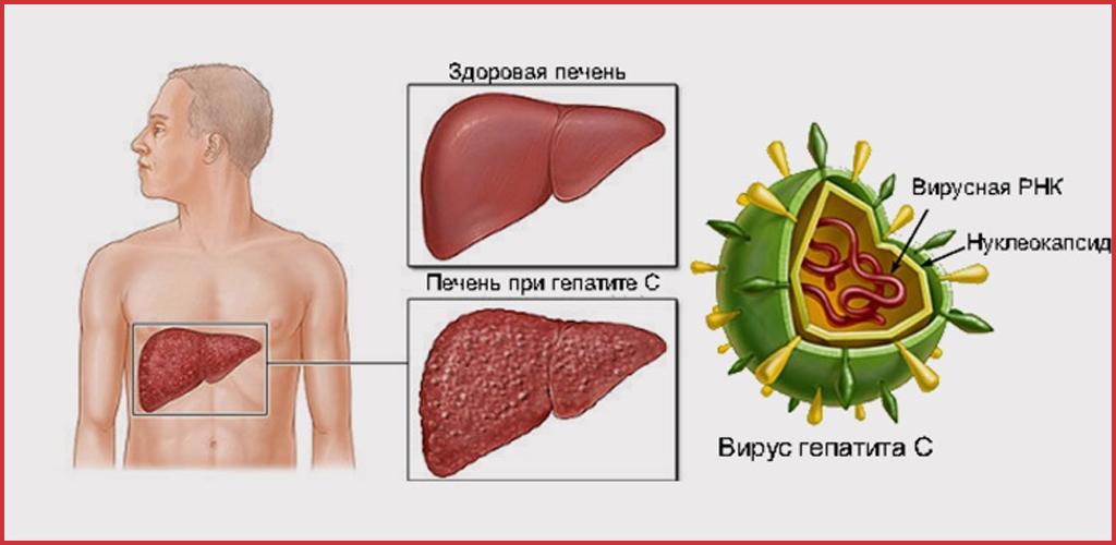 Вирусный гепатит с: симптомы и признаки у женщин и мужчин