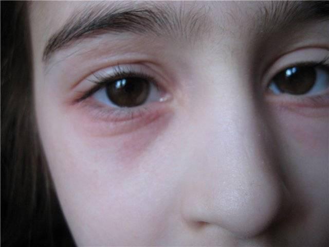 аллергический блефарит симптомы и лечение