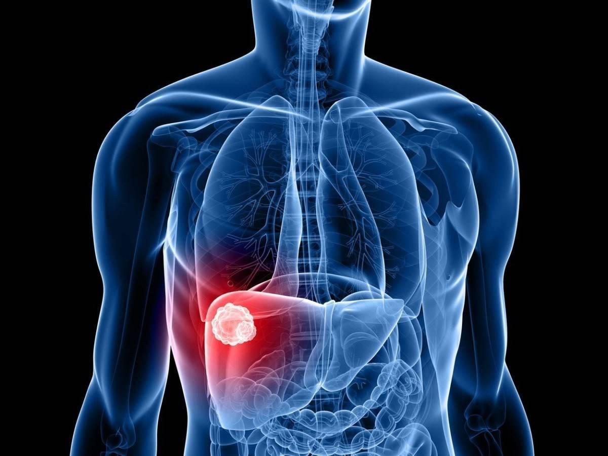 Лечение рака печени при помощи народных средств