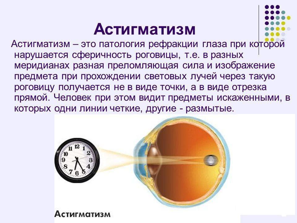 смешанный астигматизм у детей лечение