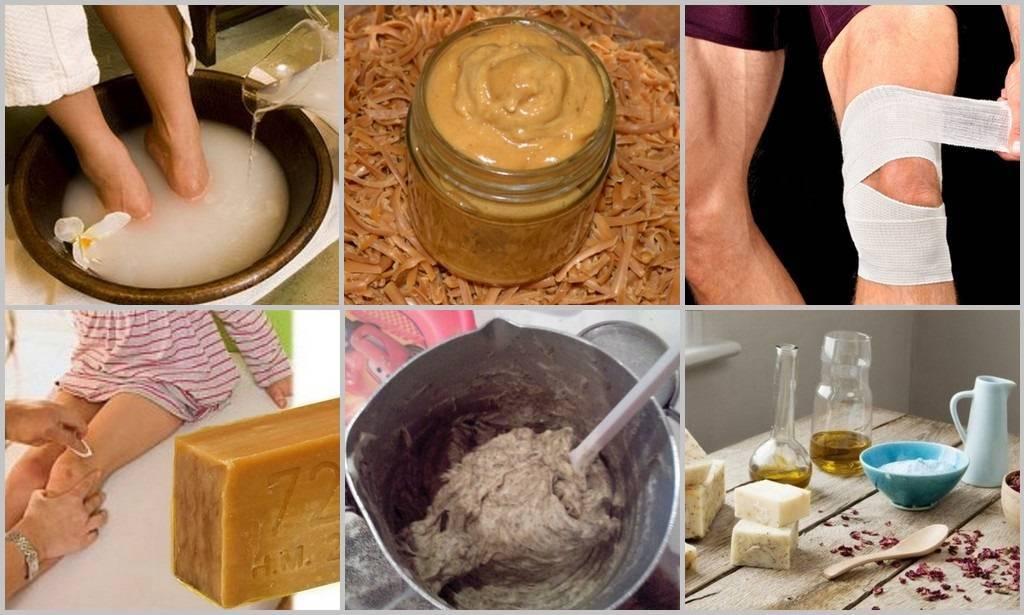 геморрой хозяйственное мыло