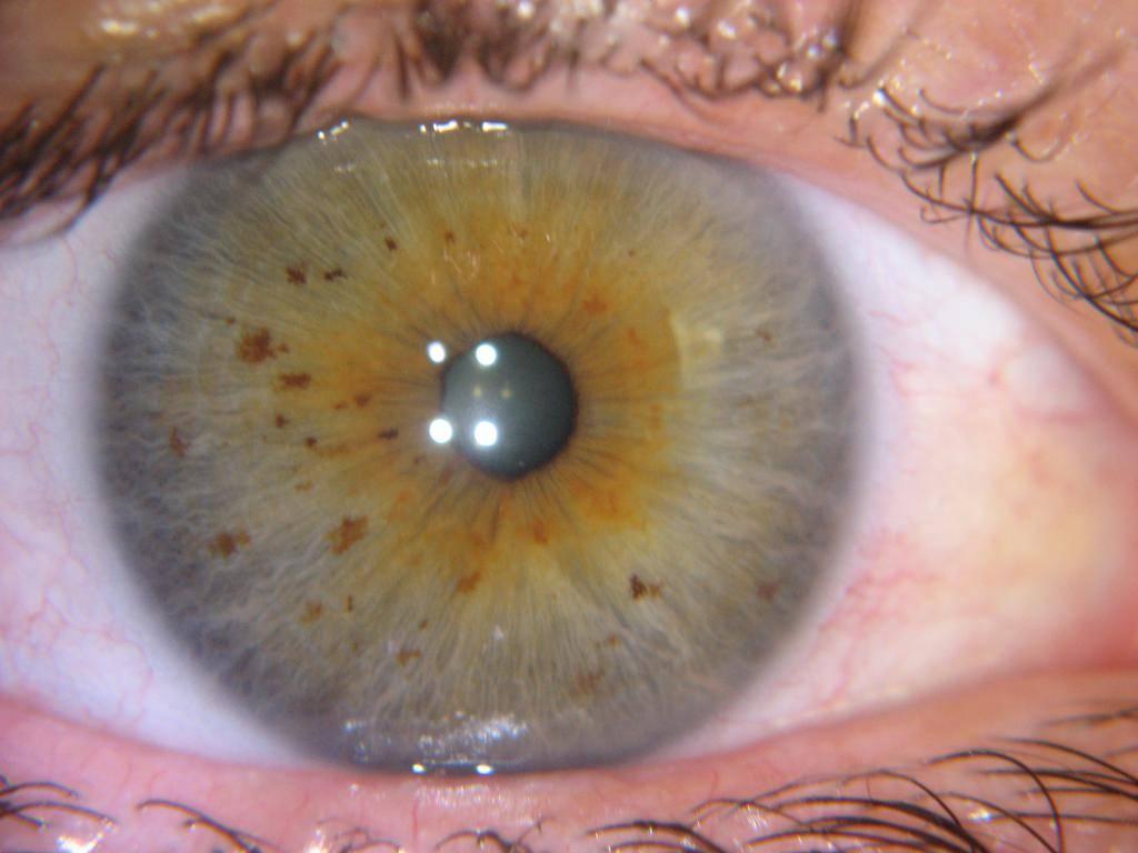 пятно в глазу